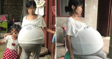 她患怪病肚子變「20公斤巨球」 被迫「坐著睡2年」超崩潰